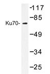 AP20349PU-N - XRCC6 / Ku70