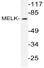 AP20443PU-N - MELK