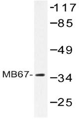 AP20444PU-N - NR1I3