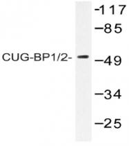 AP20451PU-N - CUGBP1