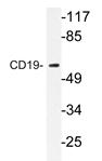 AP20344PU-N - CD19