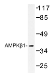 AP20343PU-N - AMPK beta-1 chain / AMPKb