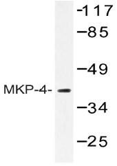 AP20456PU-N - DUSP9 / MKP4