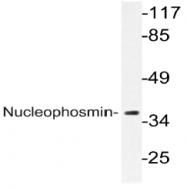 AP20457PU-N - Nucleophosmin