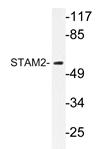 AP20340PU-N - STAM2