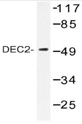AP20458PU-N - BHLHB3 / BHLHE41