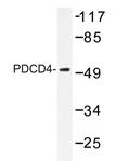 AP20338PU-N - PDCD4