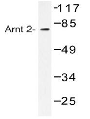 AP20460PU-N - ARNT2