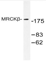 AP20465PU-N - CDC42BPB