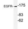 AP20334PU-N - EGFR / ERBB1