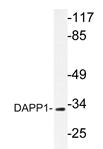 AP20333PU-N - DAPP1