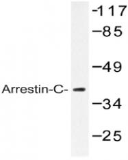AP20474PU-N - Arrestin C / ARR3