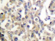 AP20321PU-N - Vimentin