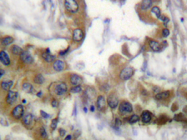AP20320PU-N - CD309 / VEGFR-2 / Flk-1