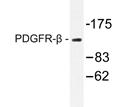 AP20314PU-N - CD140b / PDGFRB