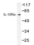 AP20308PU-N - CDw210a / IL10RA