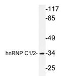 AP20305PU-N - hnRNP-C1/C2 / HNRNPC