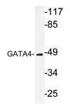 AP20302PU-N - GATA4