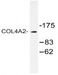 AP20477PU-N - Collagen type IV alpha 2 chain