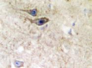 AP20300PU-N - EPHB1