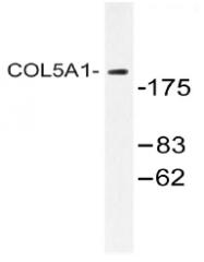 AP20478PU-N - Collagen type V