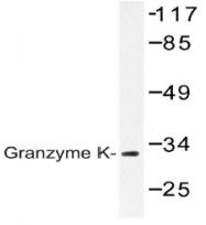 AP20485PU-N - Granzyme K (GZMK)