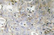 AP20488PU-N - Laminin gamma 1