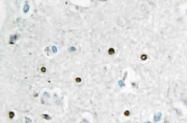 AP20491PU-N - MSH6