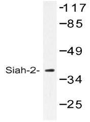 AP20493PU-N - SIAH2