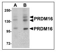 AP30689PU-N - PRDM16