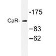 AP20293PU-N - CaSR