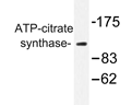 AP20289PU-N - ATP-citrate synthase