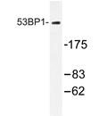 AP20288PU-N - TP53BP1