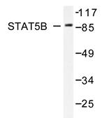 AP20284PU-N - STAT5B