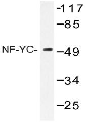 AP20495PU-N - NFYC