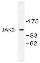 AP20496PU-N - Tyrosine-protein kinase JAK2