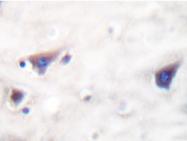 AP20280PU-N - Kinase suppressor of Ras 1