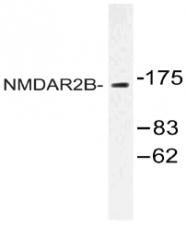 AP20498PU-N - NMDAR2B