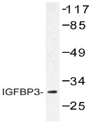 AP20503PU-N - IGFBP3