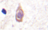 AP20273PU-N - TGFBR2