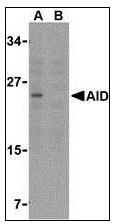 AP07447PU-N - AICDA / AID