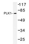 AP20264PU-N - PLK1