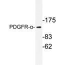 AP20262PU-N - CD140a / PDGFRA