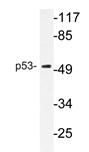 AP20261PU-N - TP53 / p53
