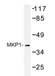 AP20257PU-N - DUSP1 / MKP1