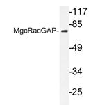AP20256PU-N - RACGAP1