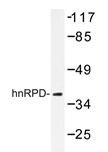AP20246PU-N - hnRNP-D0 / HNRNPD