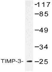 AP20507PU-N - TIMP3