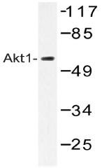 AP20380PU-N - AKT1 / PKB