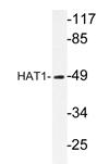 AP20234PU-N - HAT1